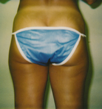 Hip, Outer and Inner Thigh Liposuction Female - Before
