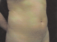 Upper and Lower Abdominal Liposuction Female - Before