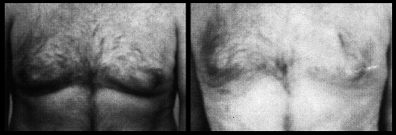 Male Breasts Liposuction