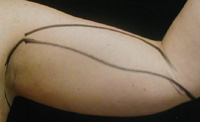 Arm Liposuction Female - Before