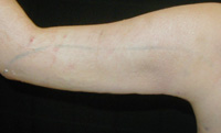 Arm Liposuction Female - Next Day