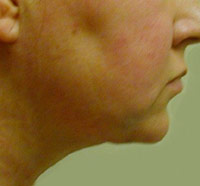 Chin and Neck Liposuction Female - Next Day