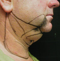 Chin and Neck Liposuction Male - Before