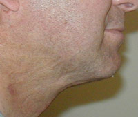 Chin and Neck Liposuction Male - Next Day