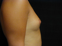 Male Breast Liposuction Male - Before