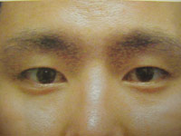 Upper Lower Eyelid Male - Before