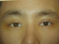 Upper Lower Eyelid Male - 4 Days Later