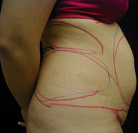 Upper and Lower Abdominal and Hip Liposuction Female - Before
