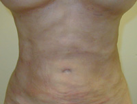 Upper and Lower Abdominal Liposuction Female - Next Day