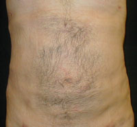 Upper and Lower Abdominal Liposuction Male - Next Day