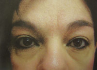 Upper Lower Eyelid female - Before