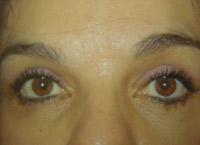Upper Lower Eyelid Female - 6 Weeks Later
