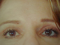 Upper Lower Eyelid Female - 2 Weeks Later