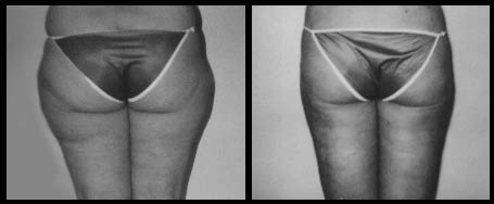 Female Outer Thigh Liposuction